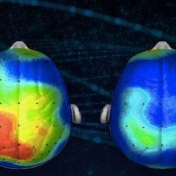 Neuroscienziati scoprono una canzone che riduce l'ansia del 65%