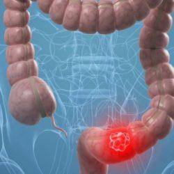 Tumore colon-retto: diagnosi in aumento tra i giovani